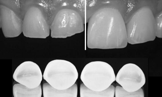 Zahnarzt Behandlung Leistung